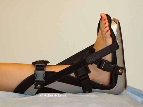 pics of night splint for plantar fasciitis by Arun Shanbhag