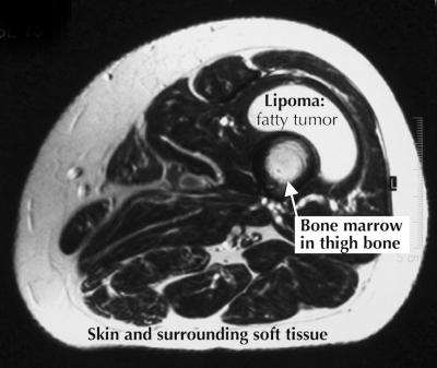 benign fat tumor lipoma in thigh